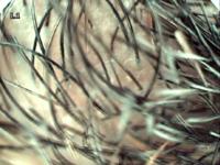 Структура кожи и волосяного покрова человека через Dr.Camscope DCS-105